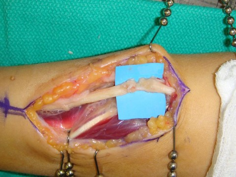 Ulnar nerve repair using allograft 1