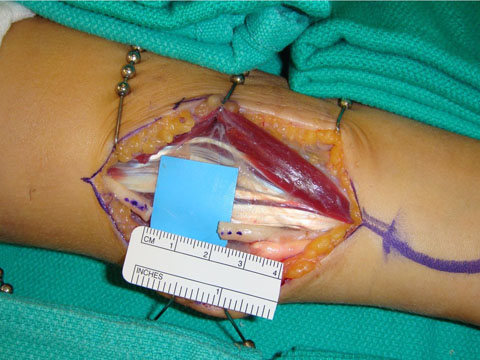 Ulnar nerve repair using allograft 2